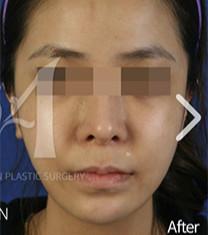 韩国美自人下颌角整形手术对比案例_术后