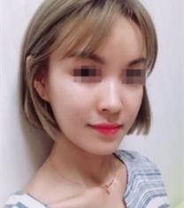 韩国DI整形医院面部填充前后对比照片_术后