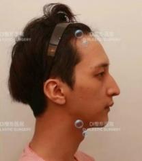 韩国DI李玟荣院长驼峰鼻矫正前后对比照片_术前