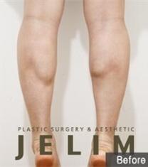 韩国JELIM医院小腿肌肉退缩术前后对比照片_术前