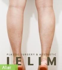 韩国JELIM医院小腿肌肉退缩术前后对比照片_术后