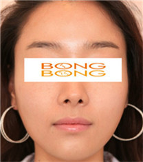 韩国棒棒整形外科面部轮廓整形案例图
