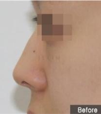 韩国JELIM医院驼峰鼻矫正前后对比照片_术前