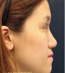 韩国奥纳比医院面部脂肪填充手术对比案例_术前