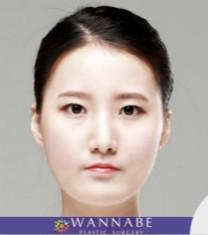 韩国奥纳比医院v-line手术对比案例