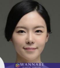 韩国奥纳比医院地包天矫正对比案例