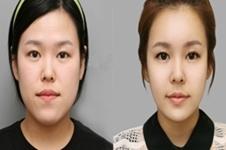 面部填充玻尿酸和自体脂肪哪个效果好,有哪些后遗症呢?