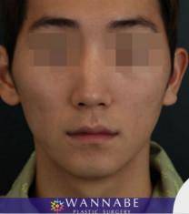 韩国奥纳比男士颧骨缩小术对比案例_术前