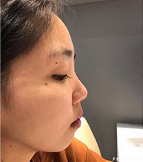 韩国PR整形医院隆鼻术后一个月对比_术前