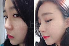 韩国李炳浍做鼻子怎么...