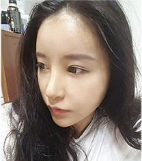 韩国koko鼻部修复手术对比案例_术后
