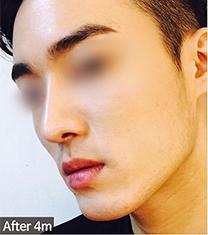 韩国优尼克男士鼻整形真人案例对比_术后
