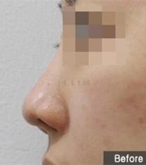 韩国JELIM医院短鼻矫正前后对比照片