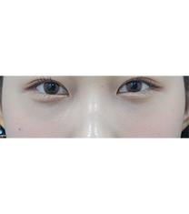韩国新沙L祛黑眼圈整形真人前后对比_术后