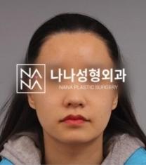 韩国娜娜整形医院面部轮廓整形前后照片_术前