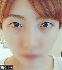 韩国优尼克全切双眼皮三个月恢复对比