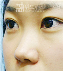韩国维德整形外科隆鼻手术案例对比图_术前