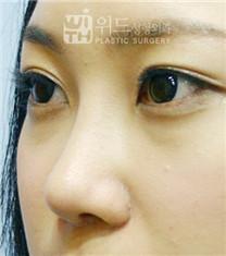 韩国维德整形外科隆鼻手术案例对比图_术后