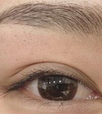 韩国qt江南美与me半永久纹眼线案例照片