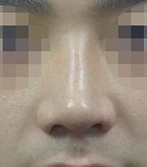 韩国koko医院男士鼻翼整形手术案例_术后
