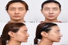 无假体隆鼻哪家医院可以做?韩国GNG整形医院怎么样?