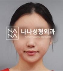 韩国NANA整形医院轮廓整形前后照片_术后