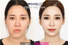 韩国双鄂手术选菲斯莱茵?还是齐娥或英格金明镇整形?
