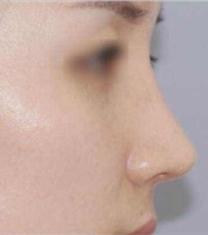 韩国nana整形驼峰鼻矫正前后对比照片_术后