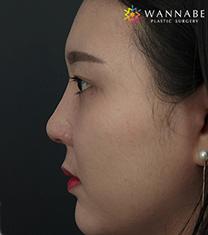 韩国奥纳比医院鼻部整形手术对比案例_术后