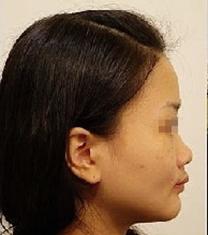 哈尔滨大韩国际整形医院鼻部手术对比_术前