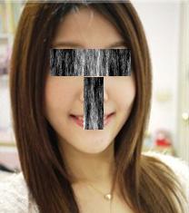 哈尔滨大韩国际整形医院面部光纤溶脂手术案例