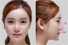 鼻头鼻翼缩小术在韩国已是普遍整形,价格在多少钱算正常