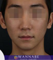 韩国奥纳比男士颧骨缩小术对比案例_术后