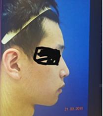 韩国新沙L男士隆鼻真人案例对比