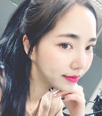韩国PR整形医院隆鼻术后一个月对比_术后