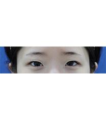 韩国SL双眼皮手术6天恢复案例前后