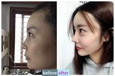 韩国碧夏医院整形案例:从扁平大妈脸如何逆袭元气少女脸?