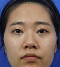 韩国koko面部轮廓+鼻部整形手术案例