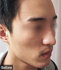 韩国优尼克男士鼻整形真人案例对比_术前