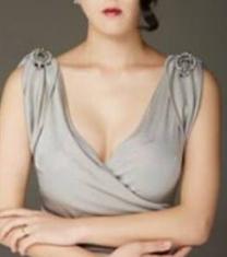 韩国美可水滴形胸部整形前后对比照片