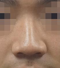 韩国koko医院男士鼻翼整形手术案例_术前