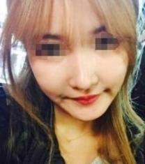 韩国高诺鼻丁泰荣驼峰鼻矫正前后照片_术后