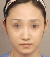 哈尔滨大韩国际整形医院面部吸脂手术案例_术后