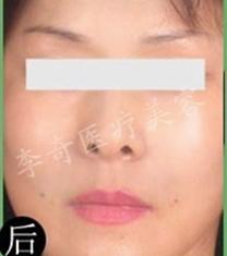 哈尔滨大韩国际整形医院面部提升手术案例