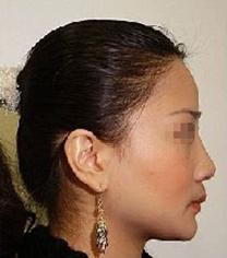 哈尔滨大韩国际整形医院鼻部手术对比_术后