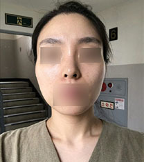 韩国美迪莹整形外科颧骨缩小案例对比_术前