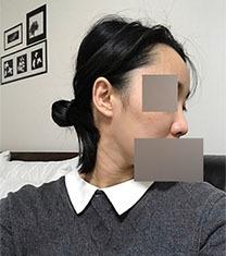 韩国一路美鼻整形案例真人自拍对比