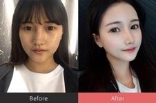 韩国普瑞美整形医院张裕珍院长眼鼻手术效果如何
