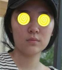 韩国丽温整形朴庭逸轮廓手术前后对比照片
