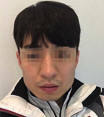 韩国TL男士v脸整形案例对比